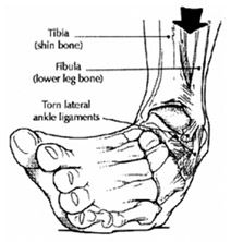 Sprain, Highlights and Pain d'epices on Pinterest