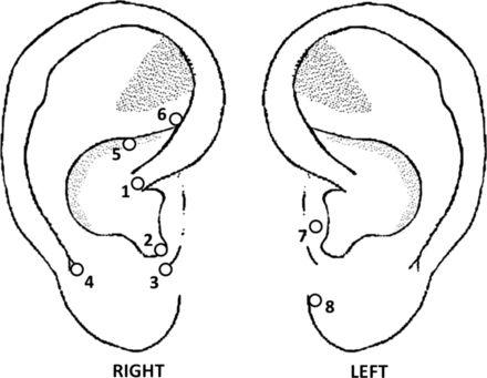 Lumbar disc herniation treated with auricular acupuncture