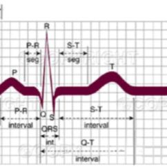 Diagram Of A Nerd Electrical Wiring Definition Normal Ecg Complex | Teaching Resources Pinterest