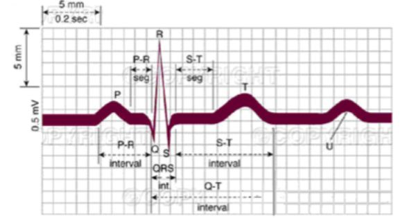 diagram of a nerd venn and carroll diagrams year 6 worksheets normal ecg complex | teaching resources pinterest