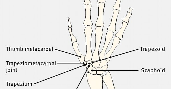 Diagram of the bones of the hand and carpus showing the