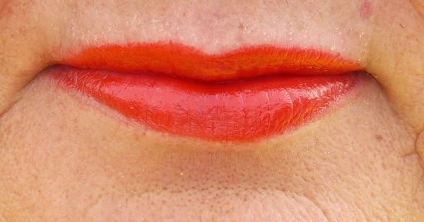 Upper Lip Wrinkles - Best Treatments to Remove Deep ...
