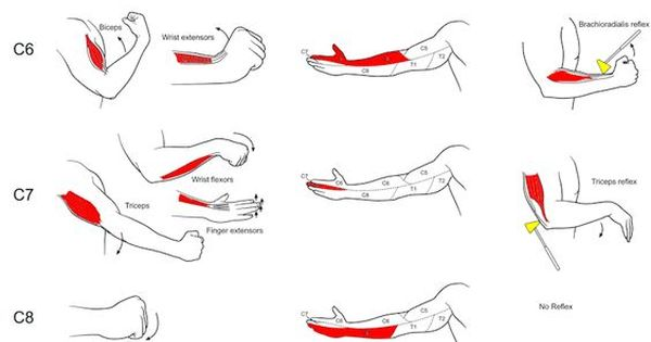 Illustrated Examination For Radiculopathy Detailing Muscle
