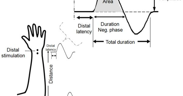 Figure 5. Parameters of a schematic CMAP assessed in motor