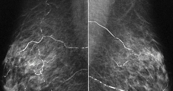 Bilateral mammograms (mediolateral oblique or MLO views ...