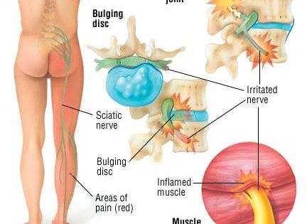 l4 nerve pain diagram wiring for 1999 jeep grand cherokee limited sciatica is a painful syndrome caused by compression or irritation of the sciatic nerve. ...