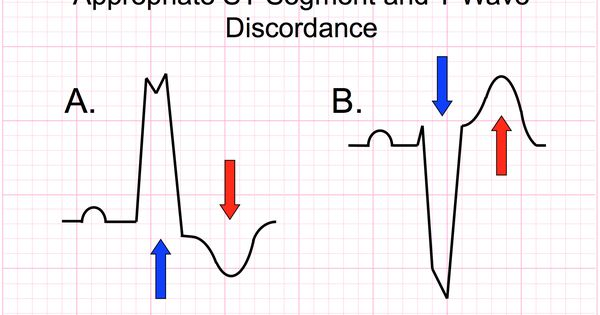 Left bundle branch block presents a dilemma for many
