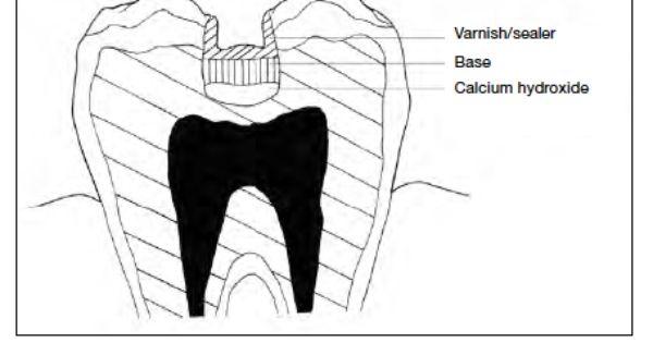 Dental Materials for Dental Assisting Exam Study Guide