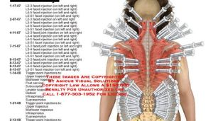 Summary of facet joint and trigger point injections | Dear Jane Quilts | Pinterest