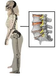 183 best images about Back injuries Lordosis Spinal ...