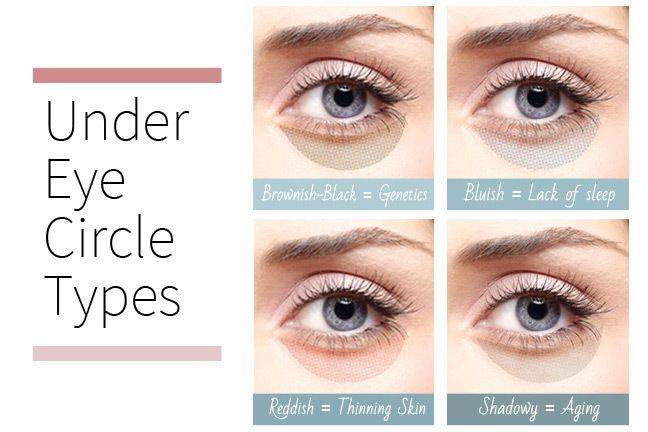 What's Your Under Eye Circle Type?   Different types of ...