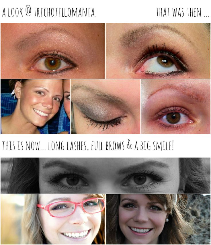 17 Best images about trichotillomania awareness on Pinterest   Homeopathy. Positive feedback and Eyebrows