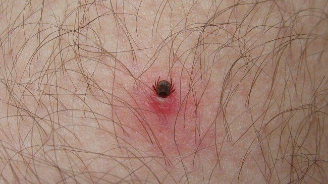 Tick Buried Under Human Skin  California Alert for Lyme