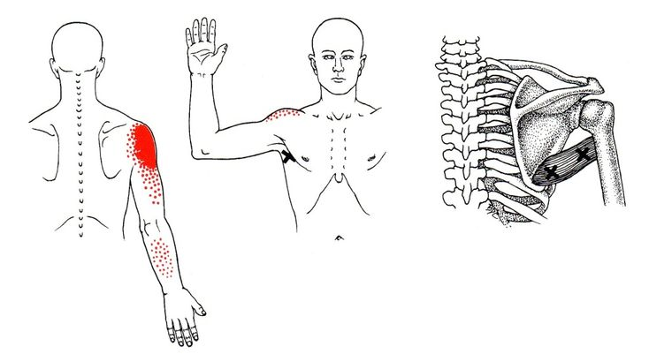 437 best images about Trigger Points on Pinterest