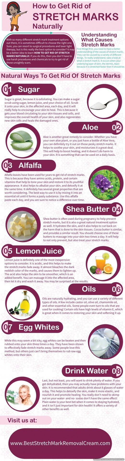 8 Ways to Get Rid of Stretch Marks Naturally …