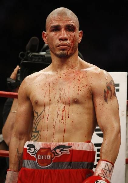 Miguel Cotto Will Use 'the Fundamentals Of Boxing' To Beat