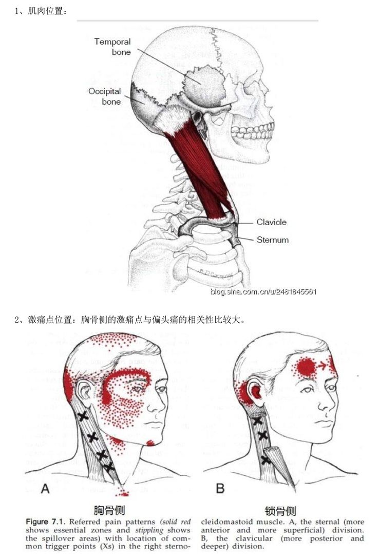 1153 best images about Health Myofascial Release Trigger