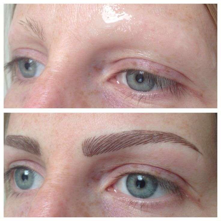 Permanent Brows Restored Due To Alopecia Permanent