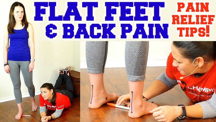 Flat feet back pain easy exercise for foot pain how to