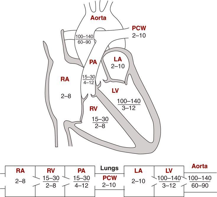 Image: Diagrams indicating normal pressures in the cardiac