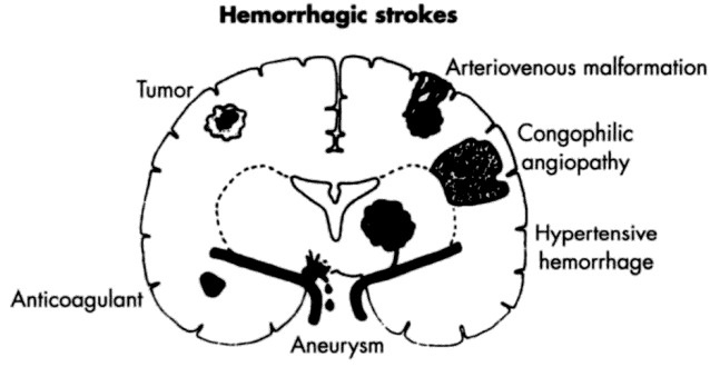 17 Best images about Hemorrhagic Stroke on Pinterest