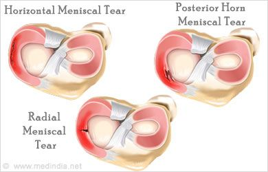 1000+ images about posterior horn meniscal tear on ...