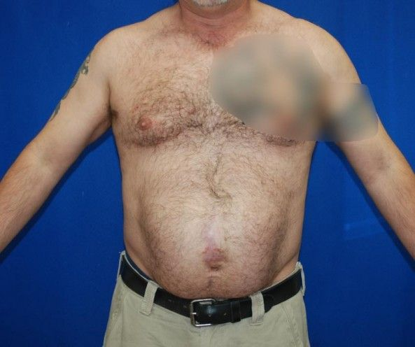 48 best images about Hernia on Pinterest   Belly button ...