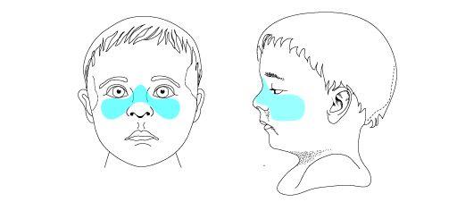 106 best images about Speech language pathology on Pinterest