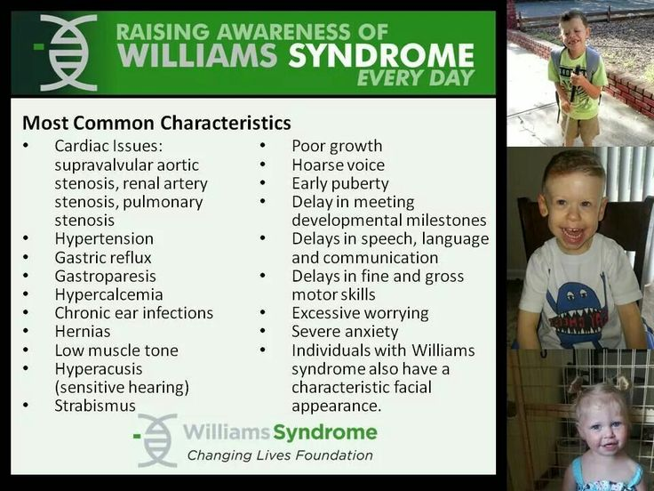 17 Best images about Williams Syndrome on Pinterest ...