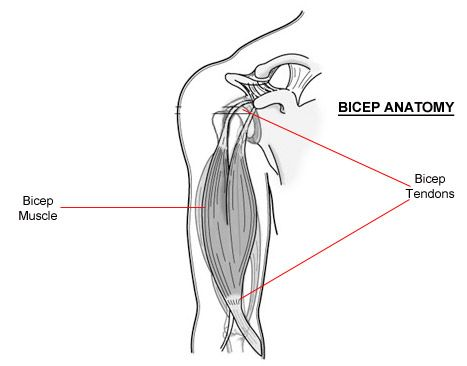 25+ best ideas about Bicep Tendonitis on Pinterest
