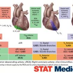 12 Lead Ekg Placement Diagram Three Way Light Switch Circuit 12-lead Interpretation | Pccn Pinterest Helpful Tips, Awesome And Waves