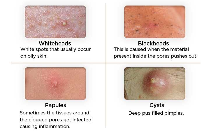 1000 Ideas About Pimples Overnight On Pinterest Get Rid