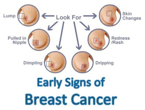 early signs of breast cancer breastfeeding pinterest signs warning signs and breast cancer