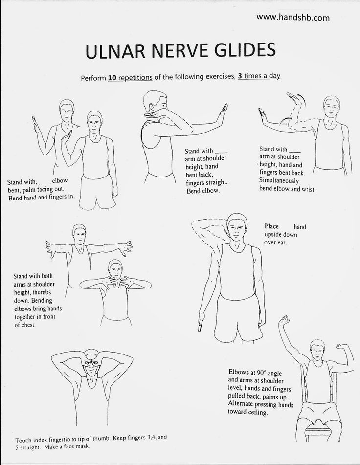 Cubital Tunnel Syndrome Exercises Pictures to Pin on