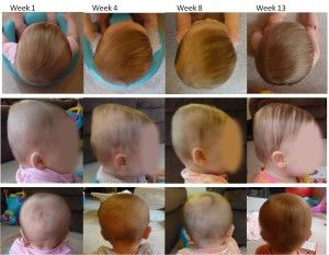17 Best images about Flat head syndrome in babies - plagiocephaly. brachycephaly on Pinterest | Massage. Infants and The head