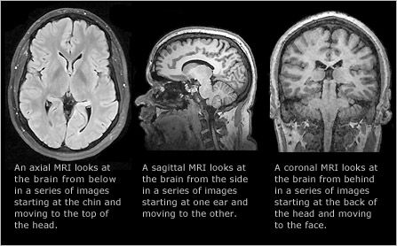 human brain diagram sagittal 1996 bmw z3 wiring mri images can be taken in three planes: axial (chin to top of head), (sideway ...