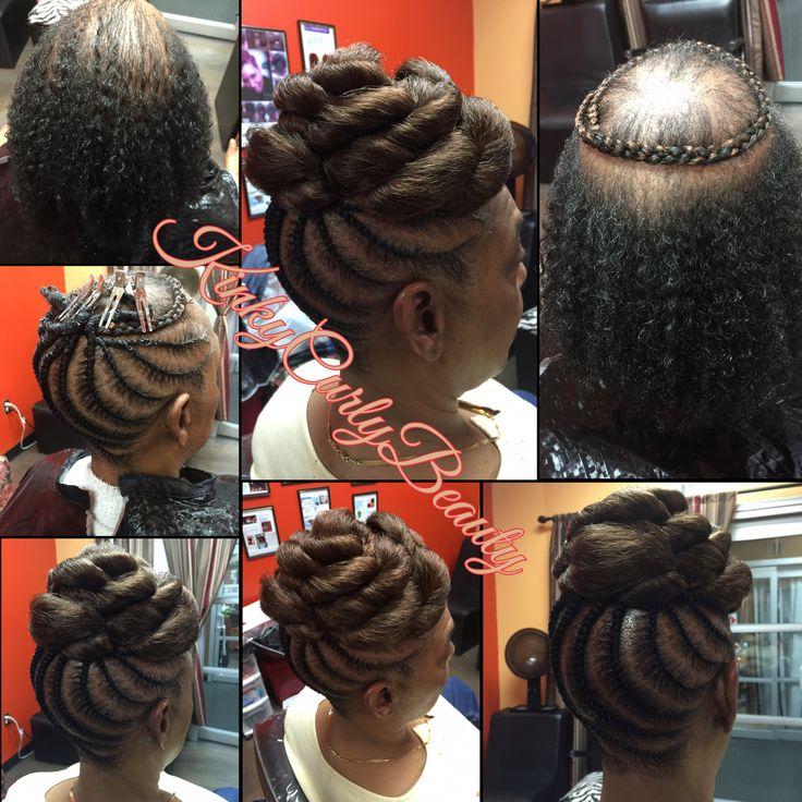 Alopecia Who Hair Styles By Kinky Curly Beautys Hair