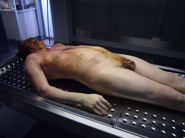 Pictures Embalming Body Morgue  Dead Body Morgue  Very