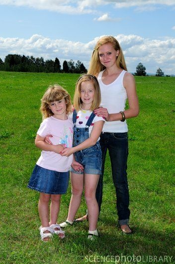 Genetic Disorders LeriWeill Syndrome Girl in the middle is 11 sister on the left is 4 and