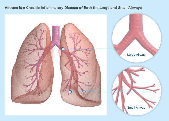 asthma jokes read more