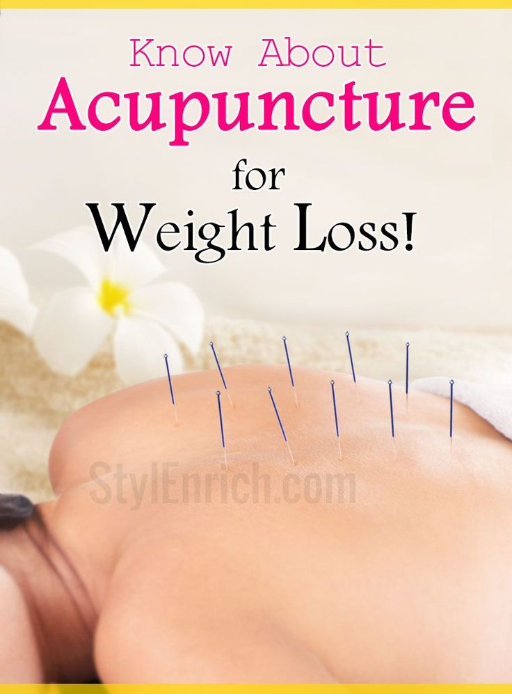 acupuncture for weight loss tips losing cave spa