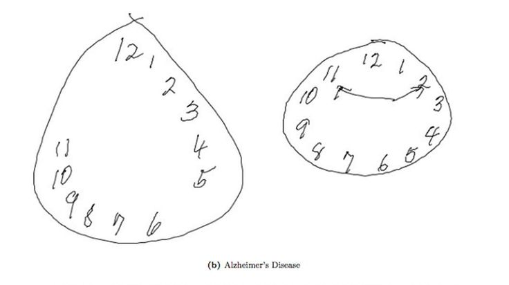 MIT researchers have updated the Clock Drawing Test (CDT