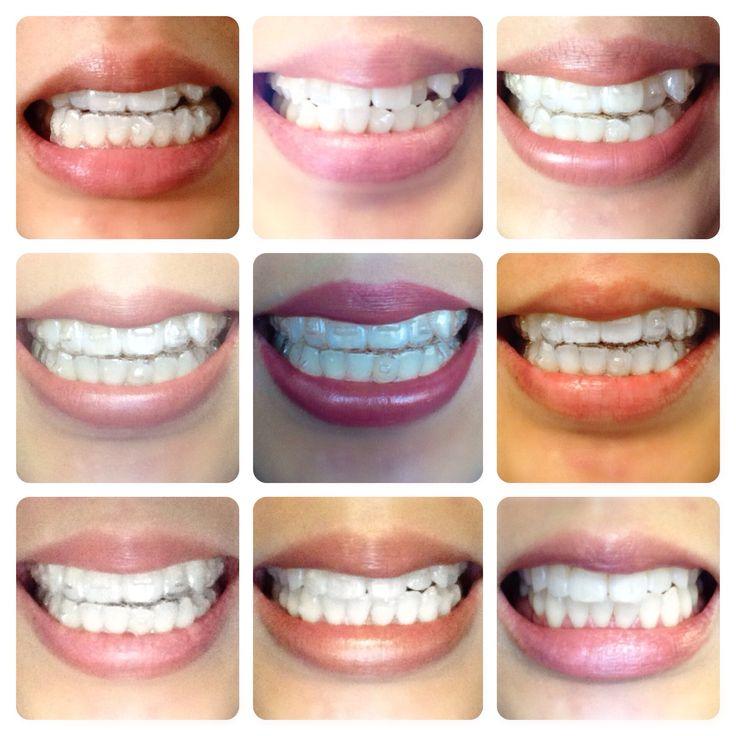 Invisalign progress 10 months invisalign smiles pinterest