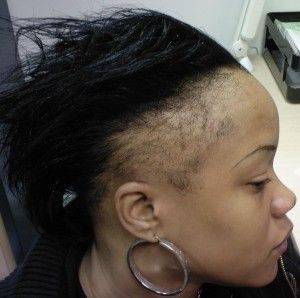 Regrowing Thin Edges And Bald Spots Caused By Alopecia