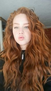 redheads freckles