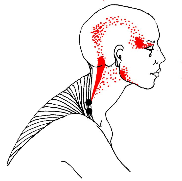 25+ best ideas about Trigger point therapy on Pinterest