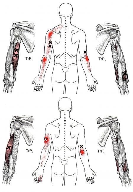diagram triceps brachii diagram