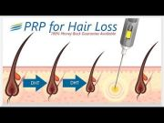 ideas hair loss