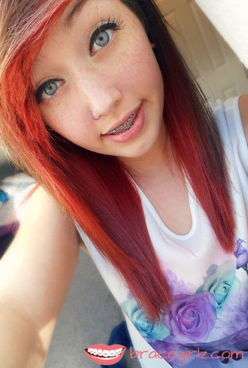 Sweet Blue eys tooth braces Girl with freckles and nose piercing  people with braces  Pinterest