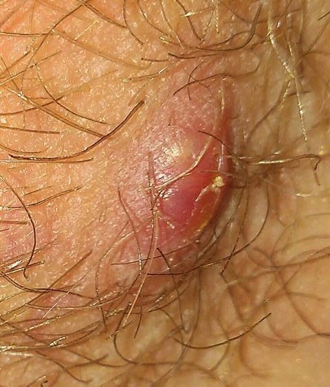 Genital Herpes Outbreak Question? 2